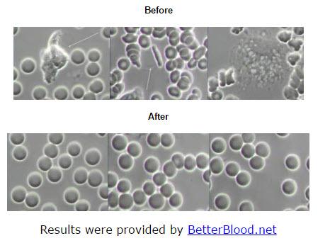 blood-test.jpg